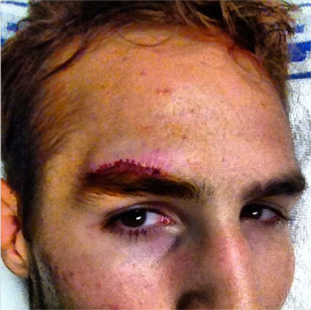 UFC Rory MacDonald Cut