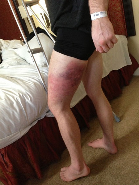 Strikeforce Nate Marquardt Thigh