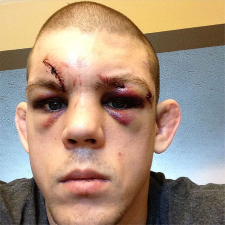 UFC Joe Lauzon Face