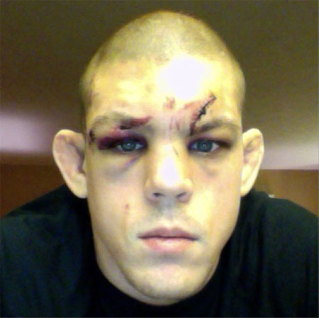 UFC Joe Lauzon Face 1