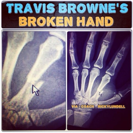 UFC Travis Browne Broken Hand